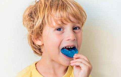 Why Mouthguards Are Important for Kids in Sports